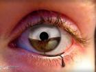 Глаза. Какие они могут быть