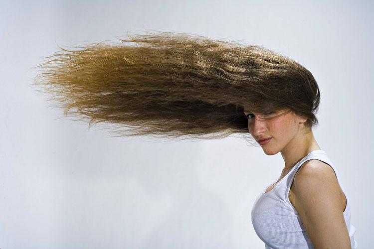 Выпадают волосы около лба у женщины