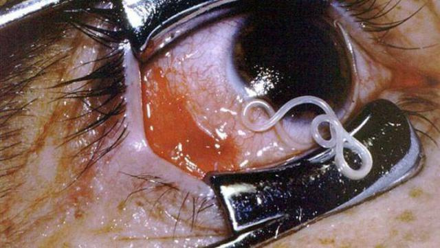 паразиты в мочевом пузыре человека фото