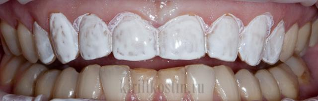 Как действуют отбеливающие полоски для зубов