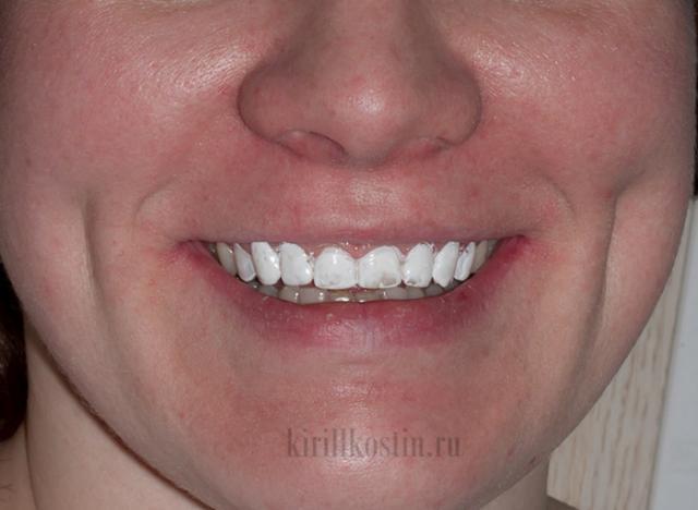 отбеливание зубов опасно для желудка