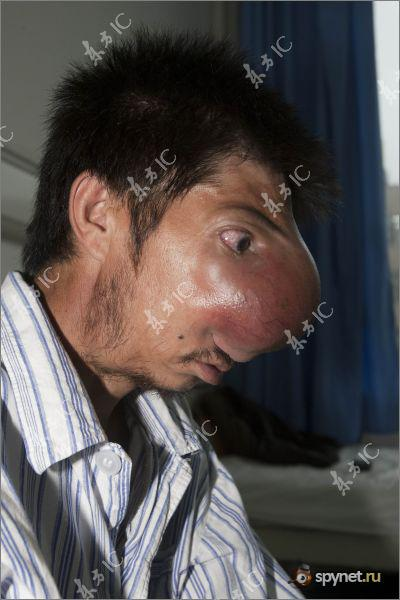 Человек с огромным носом (12 фото)