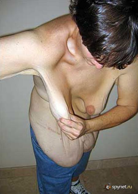 самые обвисшие груди в мире фото