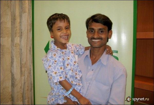 Мальчик с близнецом в груди (12 фото)